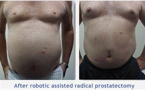 Robotic Prostate Cancer Surgery Sydney Prostate Cancer Treatment